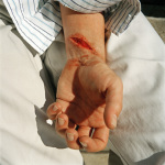 Justin, cut with a broken glass at a club, Johannesburg General Hospital, 2003