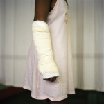 Catherine, shot in the arm by her boyfriend, Johannesburg General Hospital, 2003