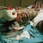 Stab victim, Johannesburg General Hospital, 2003