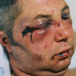Sydney, beaten up outside a night club, Johannesburg General Hospital, 2003